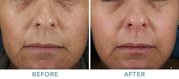 Brightening Peel Level 2 Chemical Peel Before After 01 061020