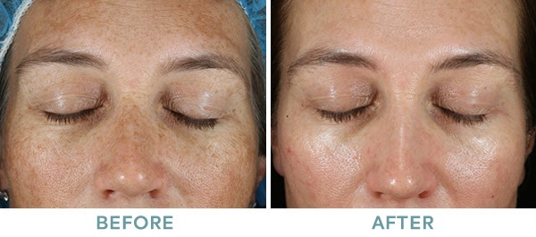 Brightening Peel Level 2 Chemical Peel Before After 02 061020
