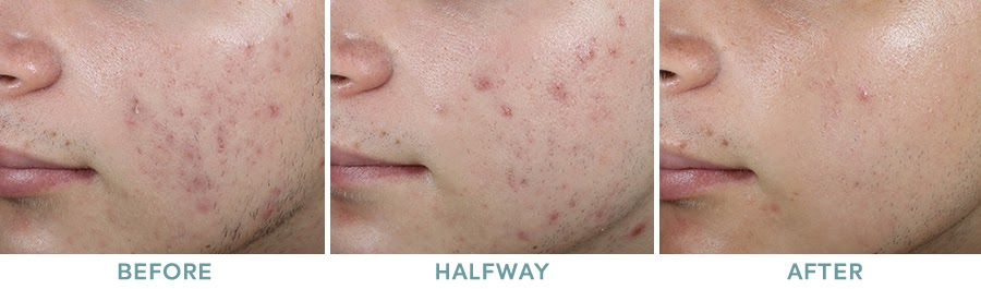 Chemical Peel Acne Before After 04
