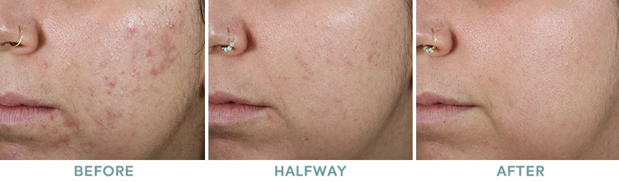 Chemical Peel Acne Before After 05