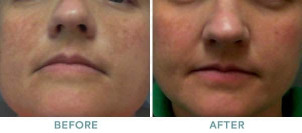 Chemical Peel TCA Before After 01