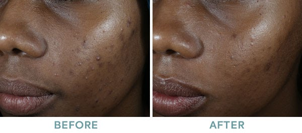 Chemical Peel ViPeel Before After 03