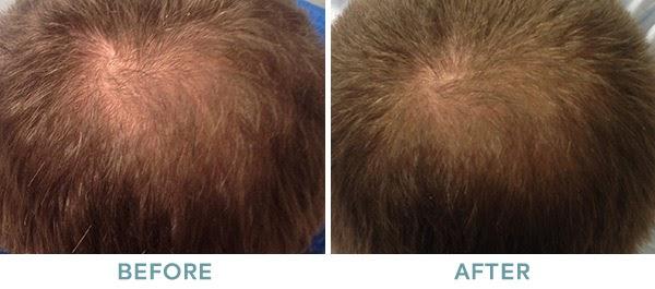 PRP Hair Restoration Before After 02