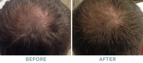 PRP Hair Restoration Before After 03