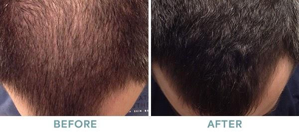 PRP Hair Restoration Before After 04