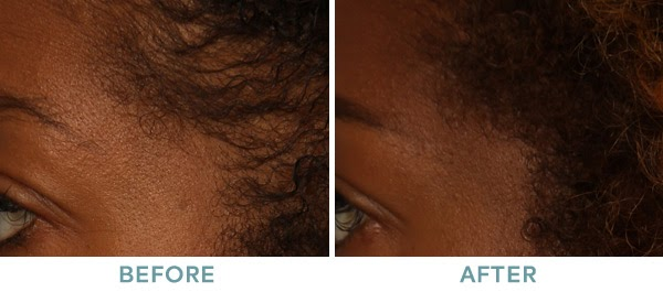 PRP Injections Alopecia Before After 01