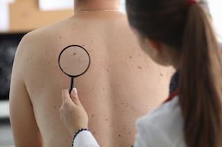 dermatologist examining moles