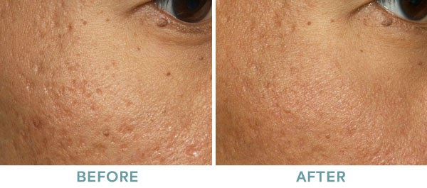 Fraxel Acne Scar Before After 01
