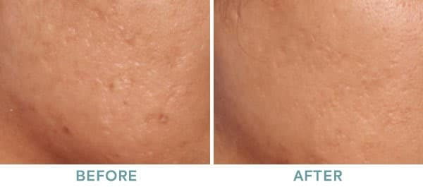 MicroPen Acne Scar Before After 01