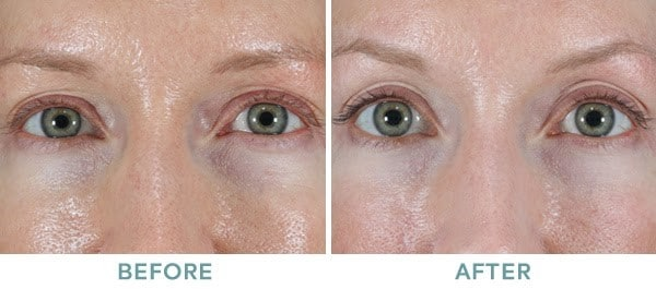 skin tightening 1