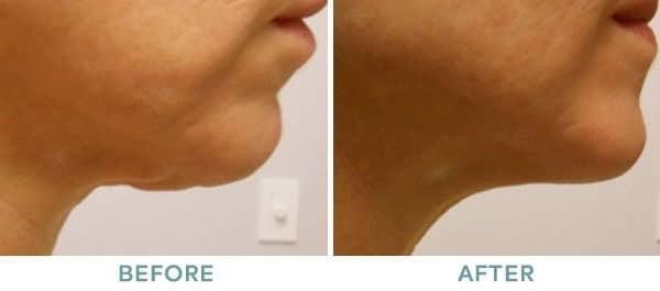 skin tightening 3